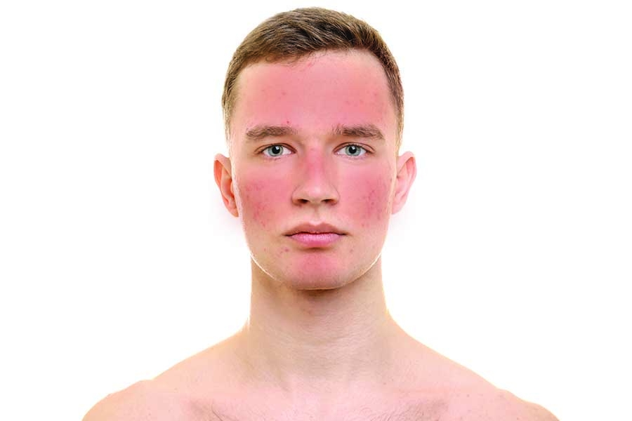 Treatments and Managing Rosacea